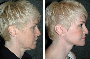 deep-plane-facelift-before-after-photos